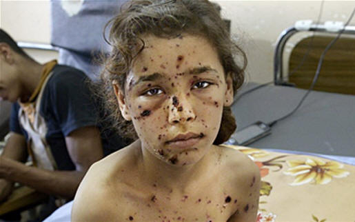 A 9-year-old girl is covered in shrapnel wounds at Al Shifa hospital in Gaza City Photo: Rex